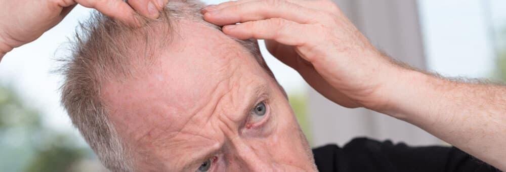 Abbildung zu Haarausfall