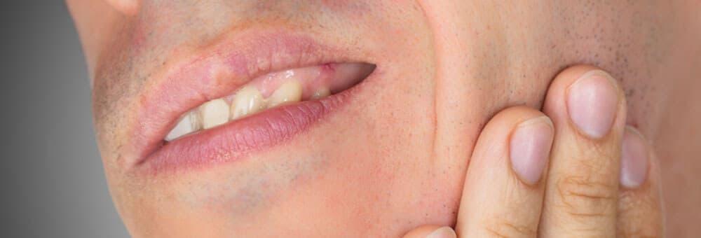 Abbildung zu Zahnschmerzen
